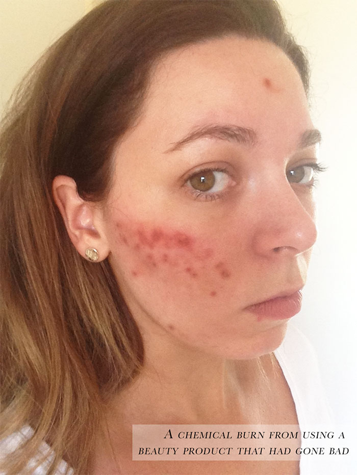 Chemical burn from a beauty product that had gone bad.